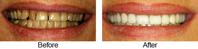 Before & Afters - Smile Gallery