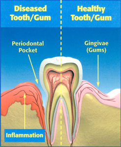 Gum Disease Treatment | General & Cosmetic Dentistry on the
