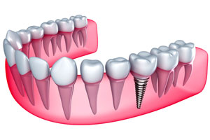 Diagram of dental implant