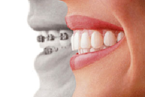 Invisalign and regular braces
