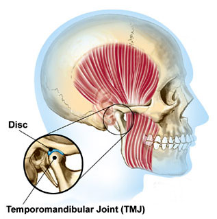 Diagram of the TMJ